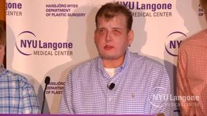 Face transplant recipient