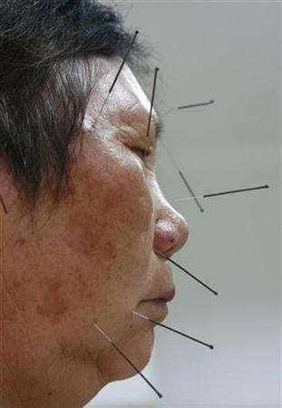 In this file photo a patient receives traditional needle therapy to cure hemiplegia at a Chinese medicine hospital in Suining, southwest China's Sichuan province May 30, 2007. The use of acupuncture before and during surgery reduces patients' post-operative pain as well as the need for pain-killing medication, researchers said on Tuesday. REUTERS/Stringer