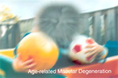 A simulation of age-related macular degeneration in an image coutesy of the U.S. Department of Health. REUTERS/Handout