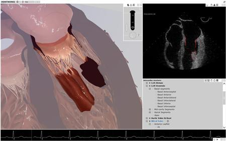 A detailed view of structures in the HeartWorks model is seen at left while a simulated ultrasound is seen at right. Five centuries after Leonardo da Vinci's intricate drawings transformed understanding of the human heart, a new computer model promises to do the same for modern-day cardiac care, experts say. REUTERS/Handout