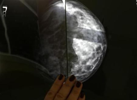 A Greek breast cancer patient is framed through a breast x-ray after a radiological medical examination in an Athens hospital October 29, 2008.REUTERS/Yannis Behrakis