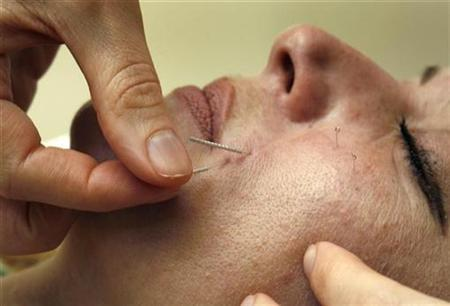 Dr. Shali Rassouli performs a cosmetic acupuncture treatment on a patient in Toronto, July 17, 2008. REUTERS/Mike Cassese