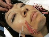 <p>Immagine d'archivio di una donna sottoposta a un trattamento di agopuntura. REUTERS/Yuriko Nakao (JAPAN)</p>