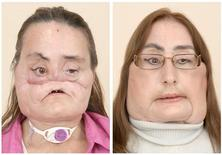 <p>Combination photo released to Reuters by Cleveland Clinic on May 6, 2009, shows images of face transplant patient Connie Culp who survived a gun shot to her face before the 22-hour procedure performed in December 2008 (L) and recent photo after 80 percent of her face transplanted. REUTERS/Cleveland Clinic/Handout</p>