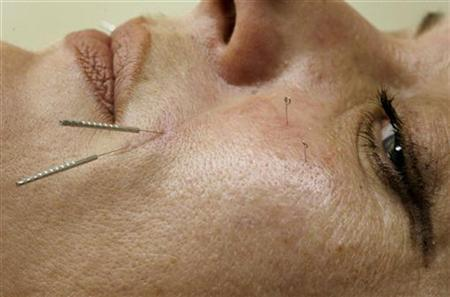 Dr. Shali Rassouli performs a cosmetic acupuncture treatment on patient Ruth Dorree in Toronto, July 17, 2008. REUTERS/Mike Cassese