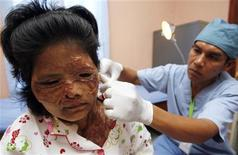 <p>25 febbraio 2010, Keo Srey Vy in un ospedale di Kandal, Cambogia. REUTERS/Chor Sokunthea</p>