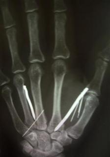 An x-ray shows nails in a hand of L.T. Ariyawathi, 49, who returned to Sri Lanka after 5 months as a maid in Saudi Arabia, in a hospital in Matara, 160 km (100 miles) south of Colombo, August 26, 2010. A Saudi couple tortured Ariyawathi after she complained of a too heavy workload by hammering 24 nails into her hands, legs and forehead, officials said on Thursday. Nearly 2 million Sri Lankans sought employment overseas last year and around 1.4 million, mostly maids, were employed in the Middle East. Many have complained of physical abuse or harassment. REUTERS/Stringer