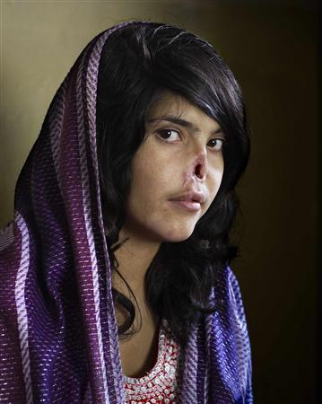 Jodi Bieber, a Institute for Artist Management for Time magazine photographer based in South Africa, has won the World Press Photo of the Year 2010 with this picture of Bibi Aisha, an 18-year-old woman from Oruzgan province in Afghanistan, who fled back to her family home from her husband's house, complaining of violent treatment. The Taliban arrived one night, demanding Bibi be handed over to face justice. After a Taliban commander pronounced his verdict, Bibi's brother-in-law held her down and her husband sliced off her ears and then cut off her nose. Bibi was abandoned, but later rescued by aid workers and the U.S. military. After time in a women's refuge in Kabul, she was taken to America, where she received counseling and reconstructive surgery. Bibi Aisha now lives in the U.S.. Jury chair David Burnett said about the photo: ''This could become one of those pictures - and we have maybe just ten in our lifetime - where if somebody says 'you know, that picture of a girl…', you know exactly which one they're talking about''. The prize-winning entries of the World Press Photo Contest 2010, the world's largest annual press photography contest, were announced February 11, 2011. REUTERS/Jodi Bieber/Institute for Artist Management for Time/Handout