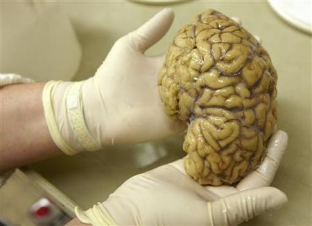 A laboratory assistant holds one hemisphere of a healthy brain in the Morphological unit of psychopathology in the Neuropsychiatry division of the Belle Idee University Hospital in Chene-Bourg near Geneva March 14, 2011. REUTERS/Denis Balibouse
