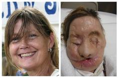 <p>A combination photo shows face transplant recipient Charla Nash, of Stamford, Connecticut, before (L) and after her injury, in these undated photographs released on June 10, 2011. REUTERS/Brigham and Women's Hospital/Handout</p>