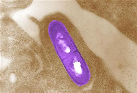 Listeria bacteria in a microscopic image courtesy of the Centers for Disease Control and Prevention. REUTERS/Handout