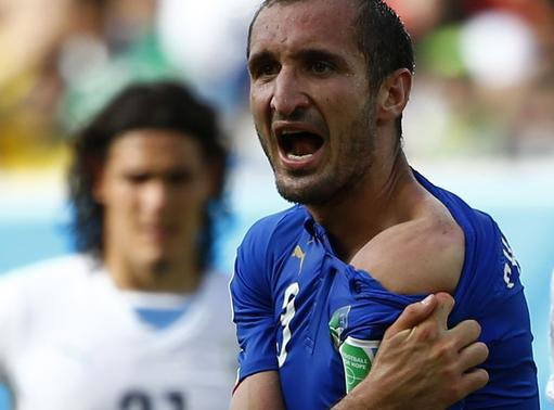 Italy's Giorgio Chiellini shows his shoulder, claiming he was bitten by Uruguay's Luis Suarez, June 24, 2014.  REUTERS/Tony Gentile