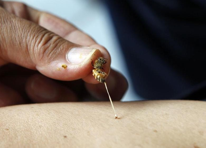 A bee sting therapist holds a bee to sting the arm of a patient in a bee farm in Silang, Cavite south of Manila June 6, 2012. REUTERS/Erik De Castro