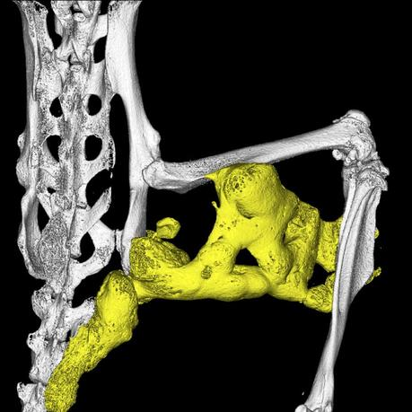 Abnormal bone formation in soft tissue, a process known as heterotopic ossification, in the hindlimb region of a mouse model of fibrodysplasia ossificans progressiva is shown in this image released to Reuters on September 2, 2015.     REUTERS/LiQin Xie and Nanditha Das/Handout