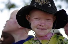 Menina albina sorri numa escola em Nyawilimilwa, na Tanzânia. 21/11/2009  REUTERS/Katrina Manson