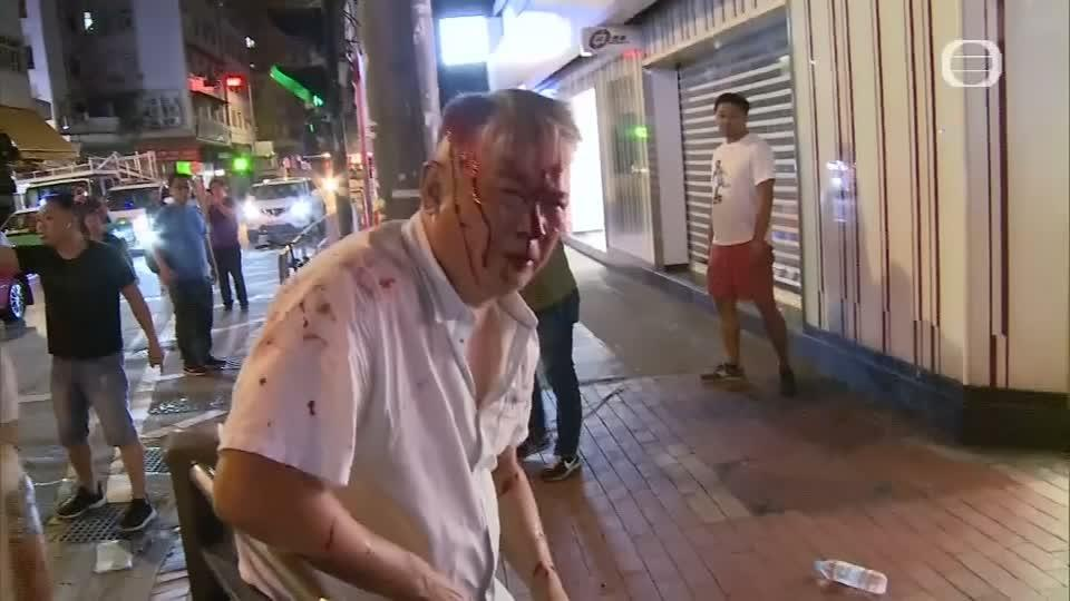 Shocking scenes of violence on the streets of Hong Kong