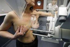 <p>Una donna si sottopone a una mammografia, in un'immagine d'archivio. REUTERS/Jean-Paul Pelissier (FRANCE)</p>