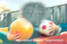 <p>A simulation of age-related macular degeneration in an image coutesy of the U.S. Department of Health. REUTERS/Handout</p>