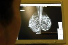 <p>A doctor exams mammograms at a clinic in Nice, south eastern France January 4, 2008. REUTERS/Eric Gaillard</p>