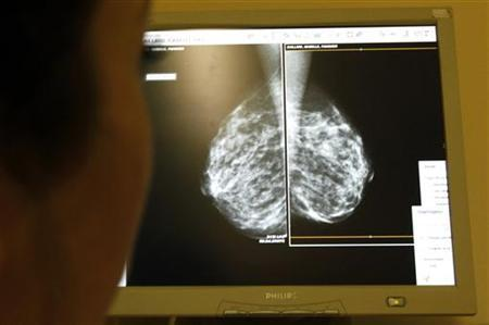 A doctor exams mammogram x-rays in a file photo. REUTERS/Eric Gaillard