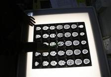 """<p>Врач изучает рентгеновские снимки мозга пациента в онкологическом центре в Индии 25 февраля 2009 года. Ученые впервые смогли доказать возможность """"чтения"""" человеческой памяти посредством наблюдения за мозговой деятельностью. REUTERS/Rupak De Chowdhuri</p>"""