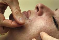 <p>Dr. Shali Rassouli performs a cosmetic acupuncture treatment on a patient in Toronto, July 17, 2008. REUTERS/Mike Cassese</p>
