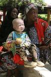 <p>A woman holds her albino child before registering him at the office of the Tanzania Albino Society (TAS) in Dar Es Salaam, Tanzania, October 30, 2008. REUTERS/Stringer/Files</p>