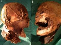 <p>A two-way combo shows the mummified skull attributed to French King Henri IV in this handout photo released by the BMJ Group (British Medical Journal) December 15, 2010. REUTERS/Gabet/Belet/Galaxy/BMJ/Handout</p>
