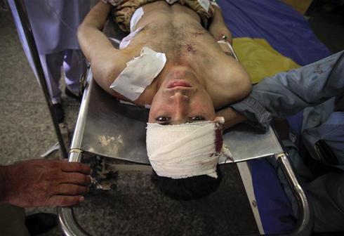 Pakistan's deadly suicide bombing