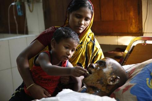 Bangladeshi burn victims