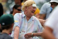 Jul 1, 2015; Oakland, CA, USA; A fan with a bandage on her forehead and blood stain on shirt smiles after being hit by a broken bat during the game between the Oakland Athletics and the Colorado Rockies at O.co Coliseum. Mandatory Credit: Kelley L Cox-USA TODAY Sports