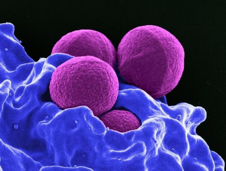 This digitally-colorized scanning electron micrograph depicts four magenta-colored, spherical methicillin-resistant Staphylococcus aureus (MRSA) bacteria in the process of being phagocytized by a blue-colored human white blood cells in this undated handout photo. Handout via REUTERS