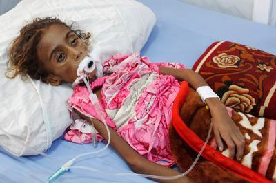 Seven-year-old Yemeni girl dies of malnutrition