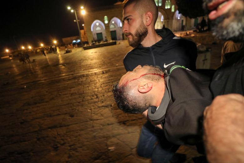 Yaralı bir Filistinli, Müslümanlar tarafından Soylu Sığınak olarak ve Yahudiler için Tapınak Dağı olarak bilinen El Aksa Camii'nin bulunduğu bileşikte İsrail polisi ile çatışmalar sırasında, birkaç Filistinli ailenin Yahudilerin hak iddia ettiği arazideki evlerden çıkarılmasıyla ilgili gerilimin ortasında tahliye edildi. 7 Mayıs 2021'de Kudüs'ün Eski Şehrindeki Şeyh Jarrah mahallesindeki yerleşimciler. REUTERS / Ammar Awad